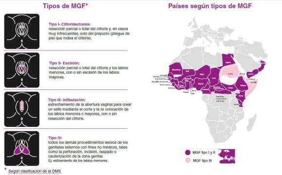 MGF-tipos-y-países-por-tipo